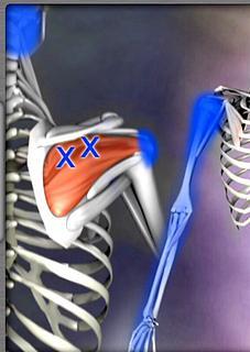 肩や腕の痛み