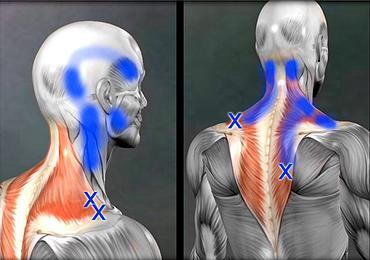 肩こりが引き起こす様々な症状1