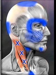 肩こりが引き起こす様々な症状2